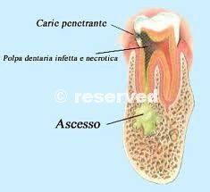 Infezioni del dente