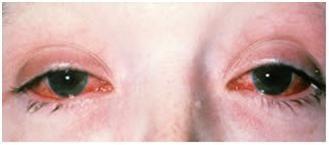 Sindrome di Reiter 2